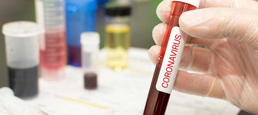 Posicionamento ABHH – Coronavírus (COVID-19)